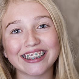 A young girl with braces.