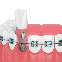 A digital image of a set of metal braces and a dental implant replacing a missing tooth