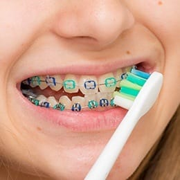 Closeup of person with braces brushing teeth
