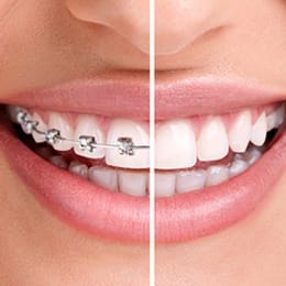 Close-up image of a smile before and after braces
