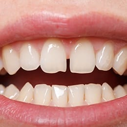 An individual smiling to expose a gap between their upper front two teeth