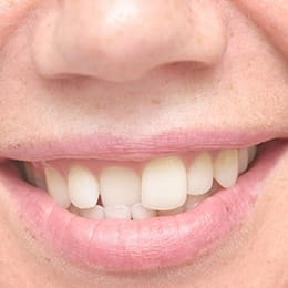 A person smiling and showing off their crooked teeth