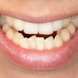 A person smiling to expose their bottom arch of teeth, which are overcrowded
