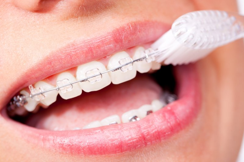 an up-close look at a person brushing their teeth and braces